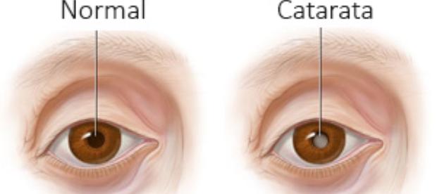saúde dos olhos - ponto de visão 2
