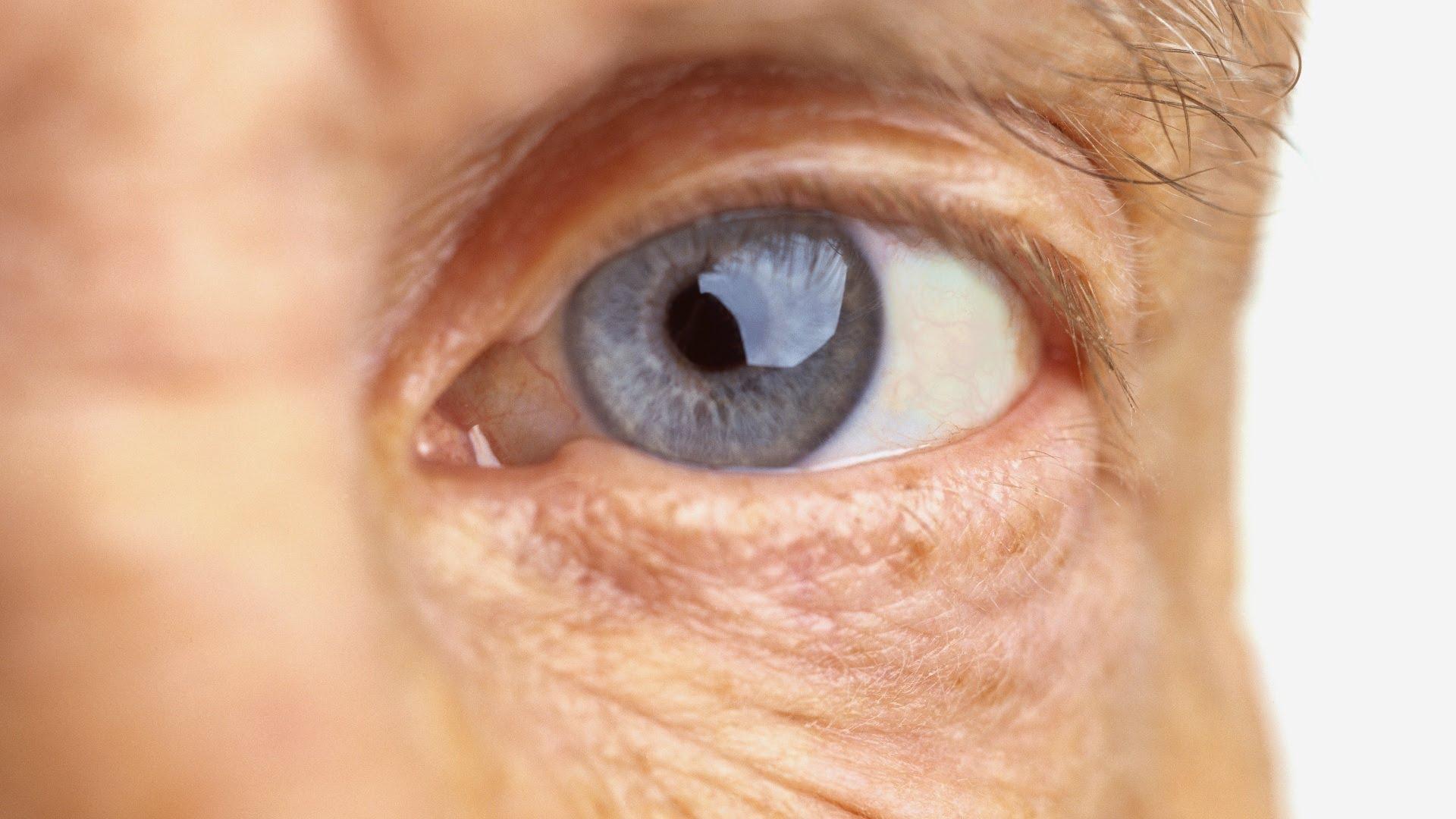 saúde dos olhos - ponto de visão